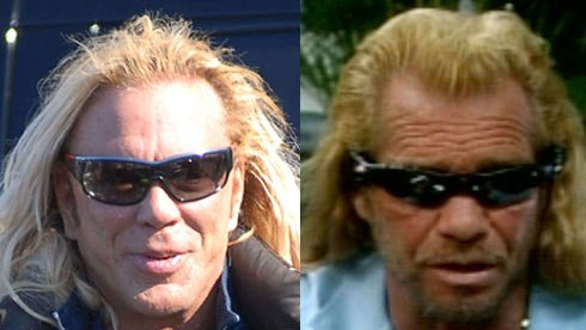 Mickey Rourke's Face R...