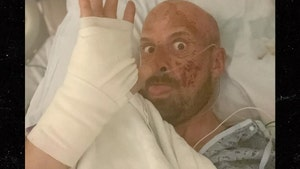 'AGT: Extreme' Contestant Jonathan Goodwin Breaks Silence On Horrific Accident