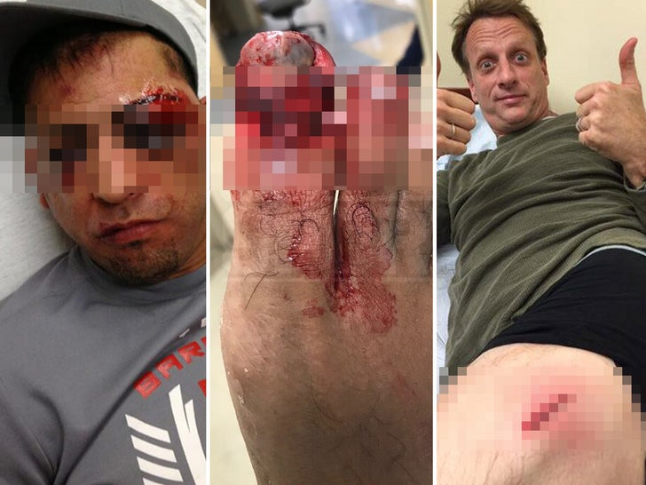 Gruesome Sports Injuries