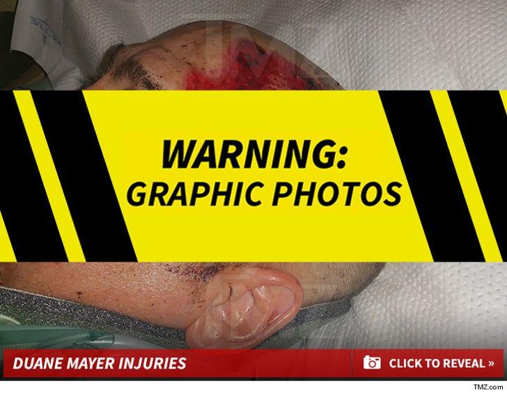 Duane Mayer Injuries