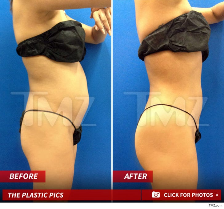 GG's Lipo -- The Before and After Pics