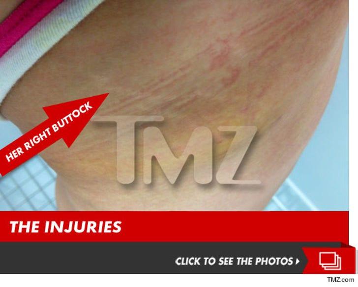 Victim #4 from Nightclub Brawl