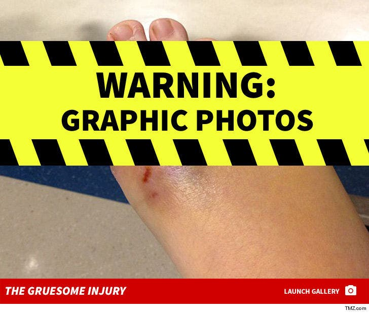 Katy Perry Lawsuit, Alleged Injuries