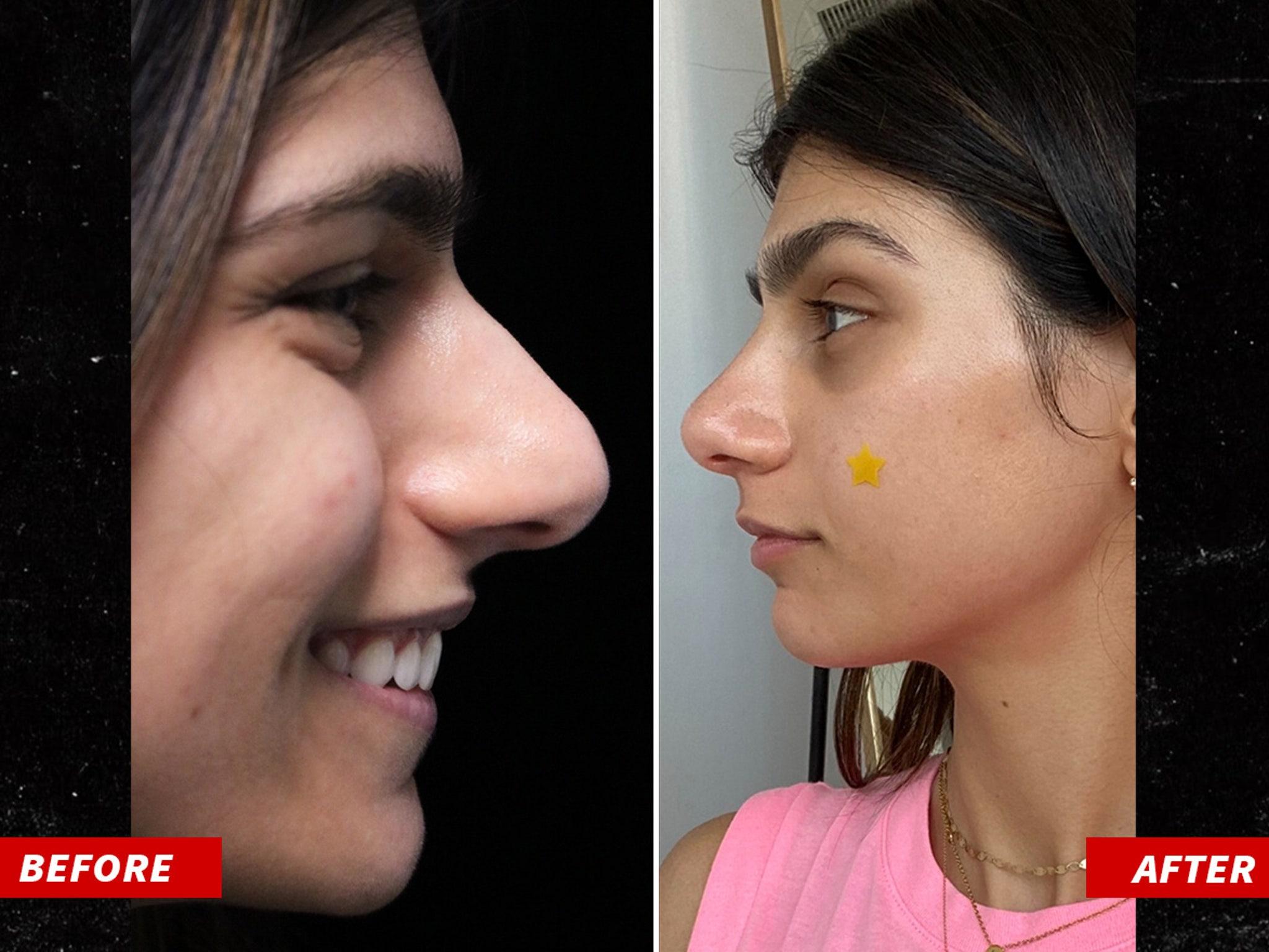 Mia Khalifa Gets 15 000 Nose Job See The Results