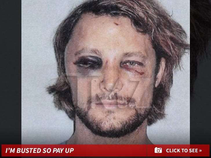 Gabriel Aubry -- Before & After Fight Photos
