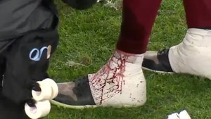 NFL's Alex Smith's Shin Oozes Blood After Getting Gashed By Teammate