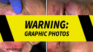 UFC's TJ Dillashaw Reveals Disgusting Gash After Big Comeback Fight