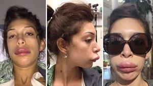 Farrah Abraham -- Pays Dearly for Lip Service