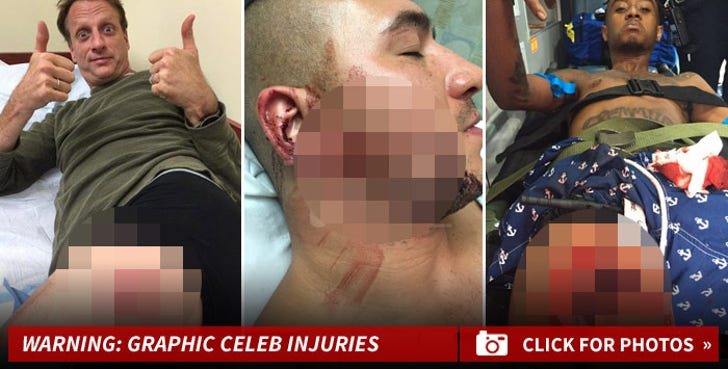 Gruesome Celebrity Injuries