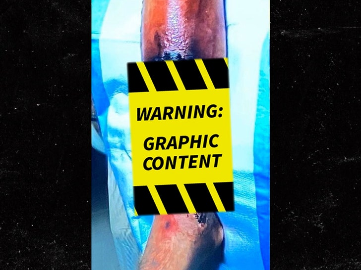 Alex Smith's Leg Injury -- Graphic Photos