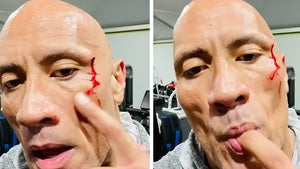 The Rock Tastes His Own Blood After Gym Injury, Gets Stitches to Close Gash