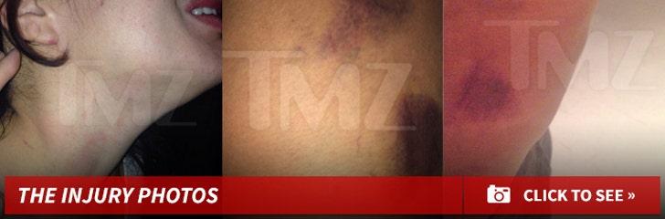 Rapper Joe Budden -- Accused Of Viciously Beating GF (PHOTOS)