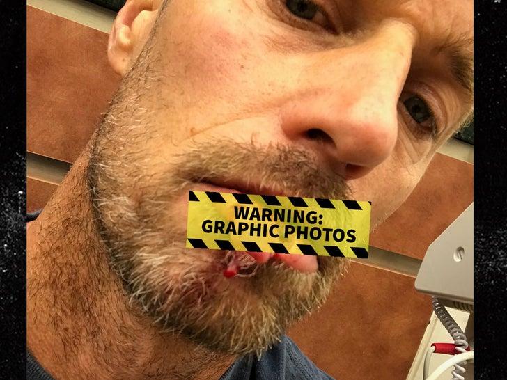 Rib Hillis' Gruesome Lip Injury