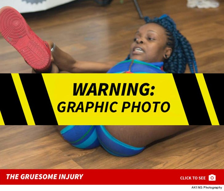Viral Fire Crotch Dancer -- The Gruesome Injuries