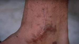 Dak Prescott's Gnarly Ankle Surgery Scars Revealed In 'Hard Knocks' Opener