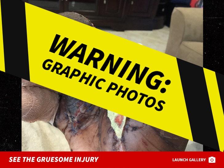 Jason Pierre Paul Hand Injury