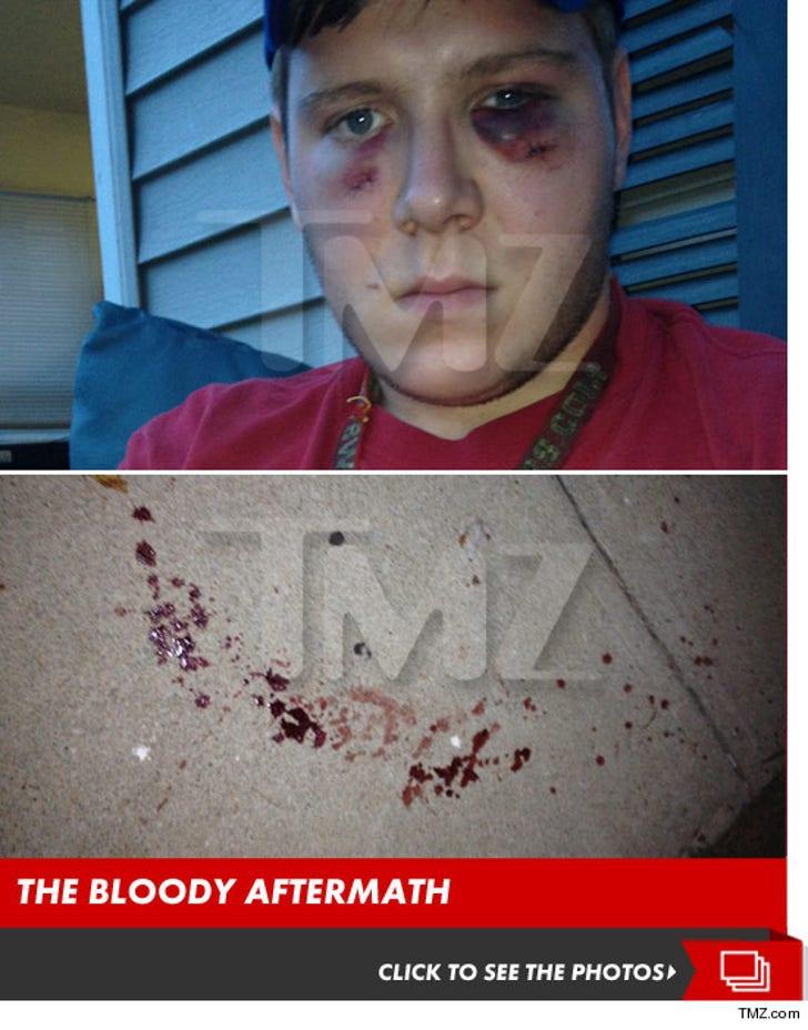 John Mellencamp's Sons -- Alleged Victim's Pulverized Face