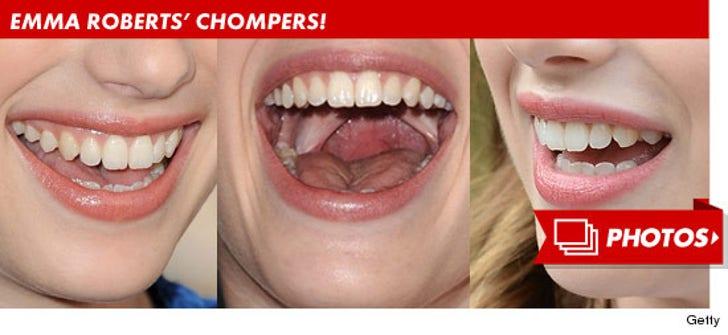 Emma Roberts' Chompers