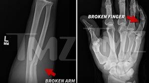 Floyd Mayweather Accusers -- The Cracked Bones [Photos]