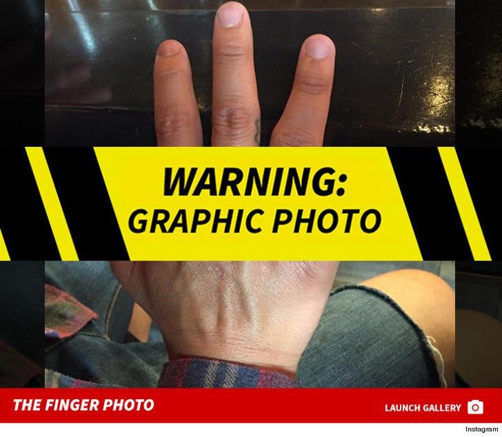Nick Rimando's Finger Photo