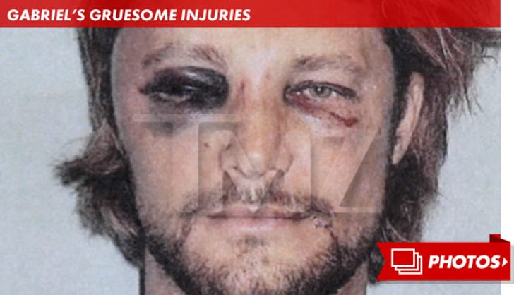 Gabriel Aubry's Gruesome Injuries
