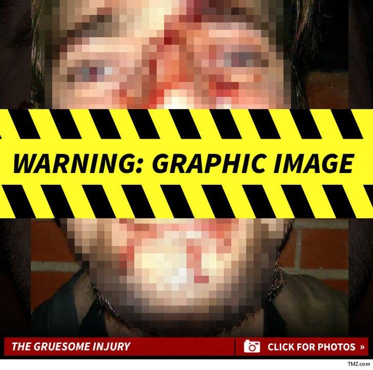 Danzig -- The Alleged Injury