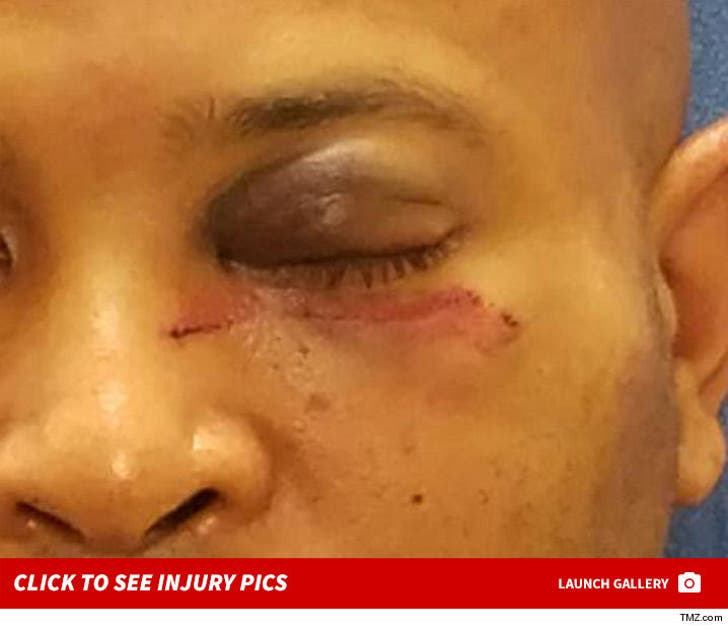 Mike Epps Alleged Battery Victim -- Injury Photos