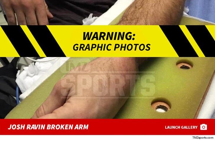 Josh Ravin's Broken Arm -- The Injury Photos