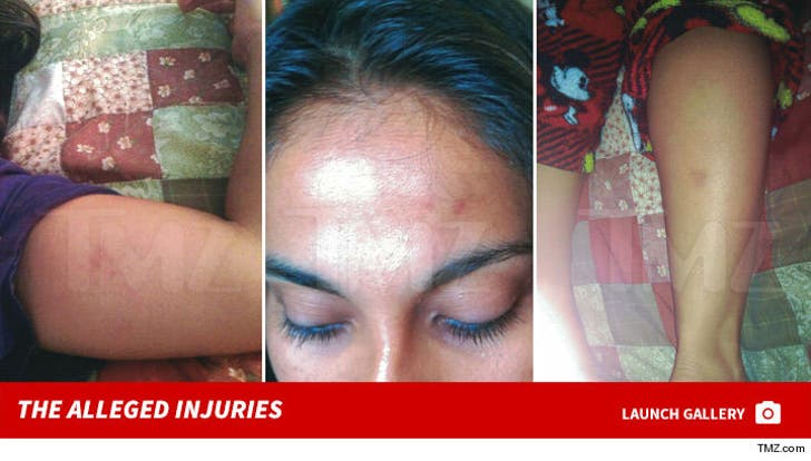 Andrea Ugalde -- The Alleged Injuries
