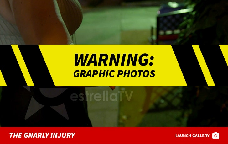 Rica Famosa Latina Injuries