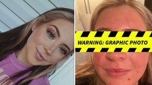 Chihuahua Bites Woman's Eyelid Off After She Got Lashes Done, Horrific Images