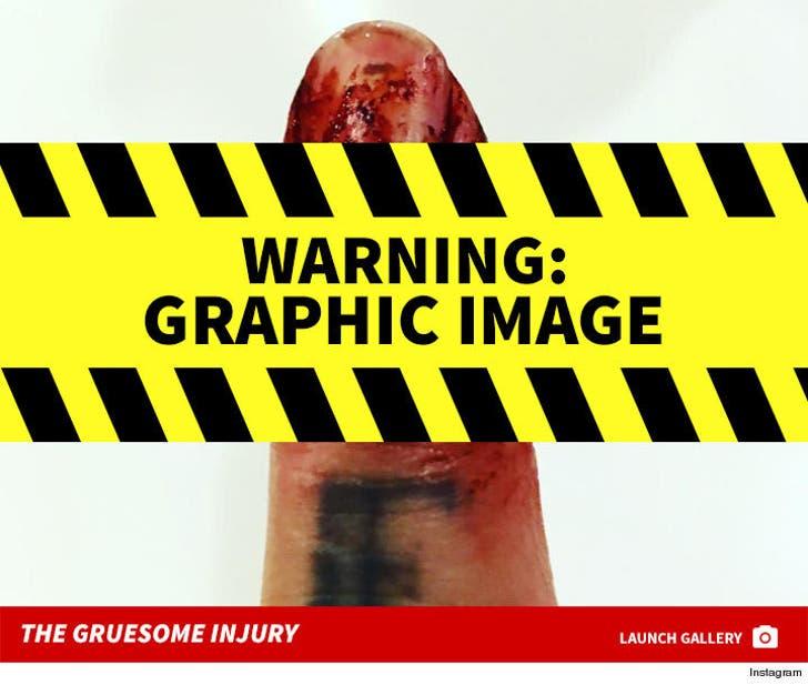 Travis Barker's Gruesome Finger Injury