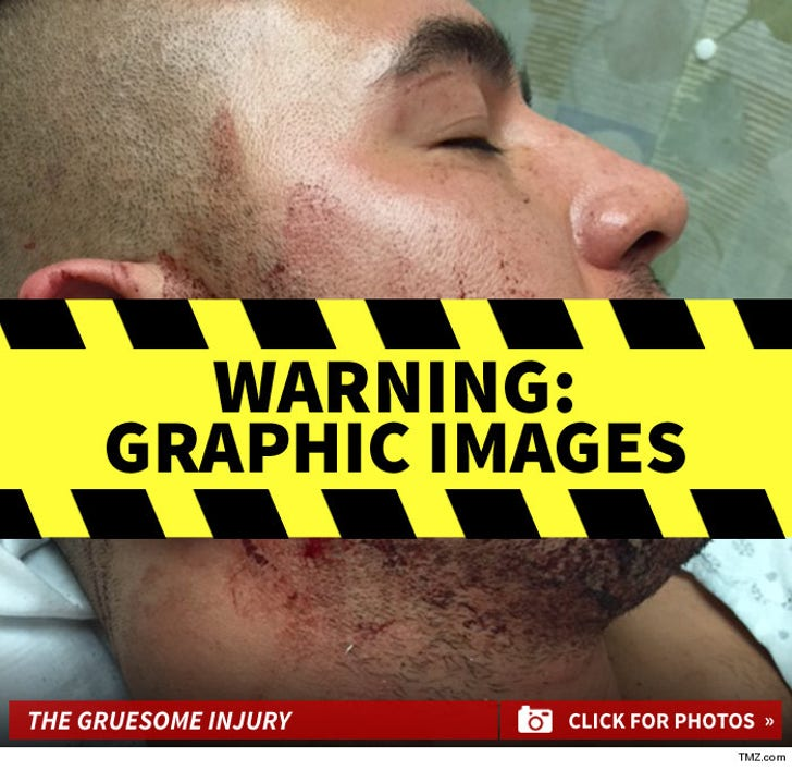 London Rene's Gruesome Injuries