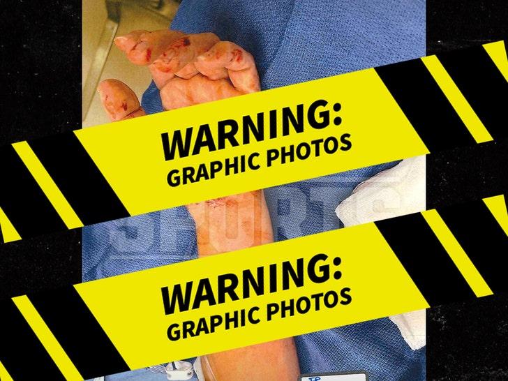Ezekiel Elliott -- Alleged Dog Attack Injuries