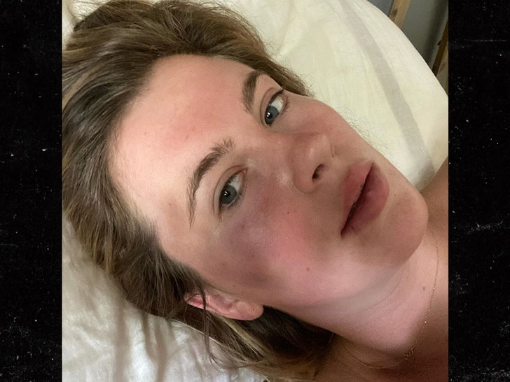 Ireland Baldwin Attacked by Crazed Woman on Drugs, Pics of Bruised Face