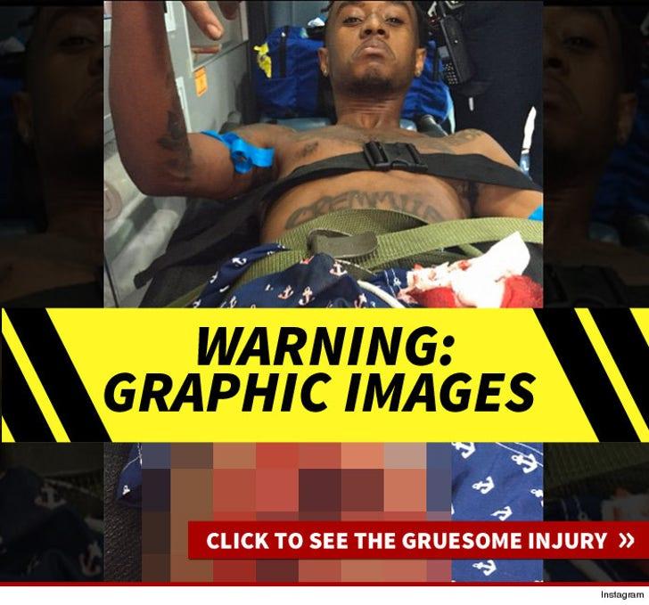 Rae Sremmurd's Gruesome Injury Photos