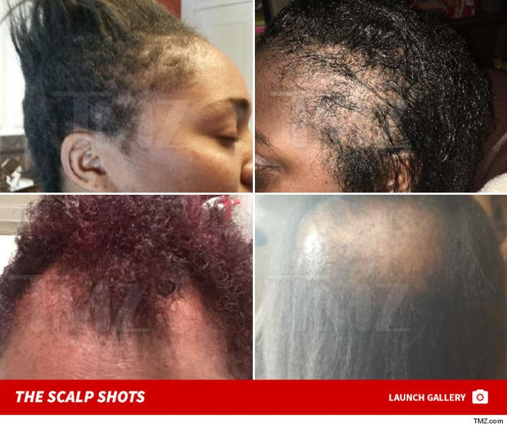 L'Oreal Scalp Shots