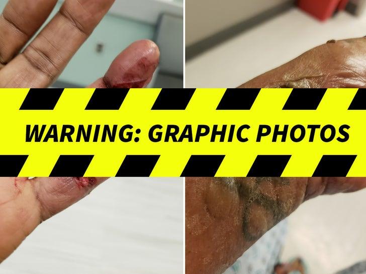 Folana Jackson's Alleged NutriBullet injuries