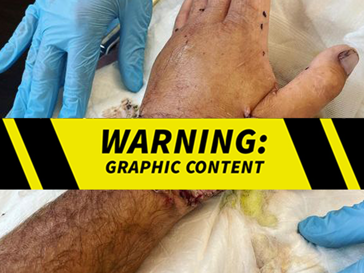 Sean Mcinerney Shark Attack Injury Photo