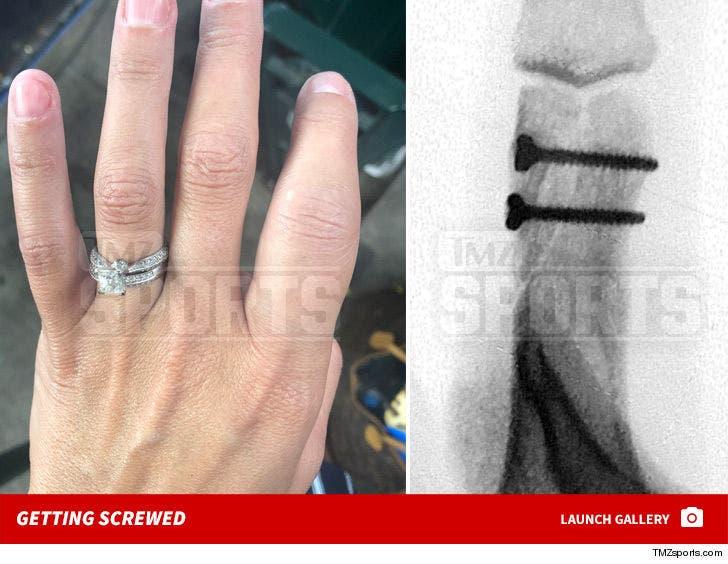 Astros Fan -- Finger Injury Photos