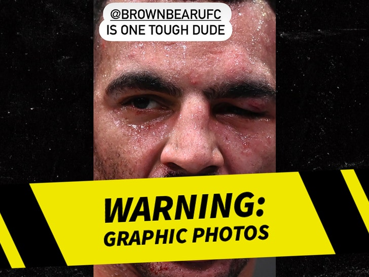 UFC Fighter Devin Clark, Photo of Teeth Smashed in During Fight.jpg