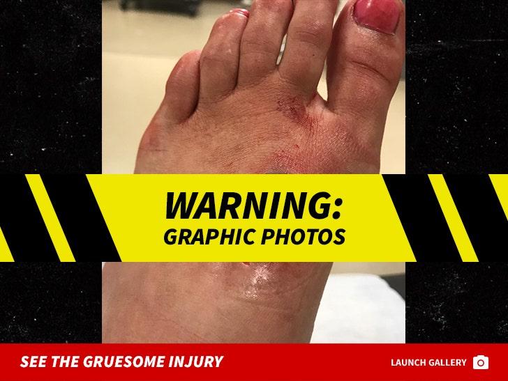 Paige VanZant's Gruesome Injury