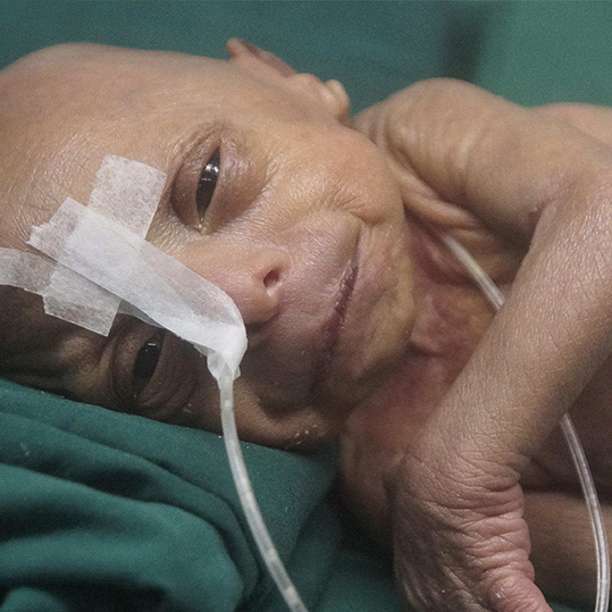Baby Born In Bangladesh Has Benjamin Button Like Disease Photo