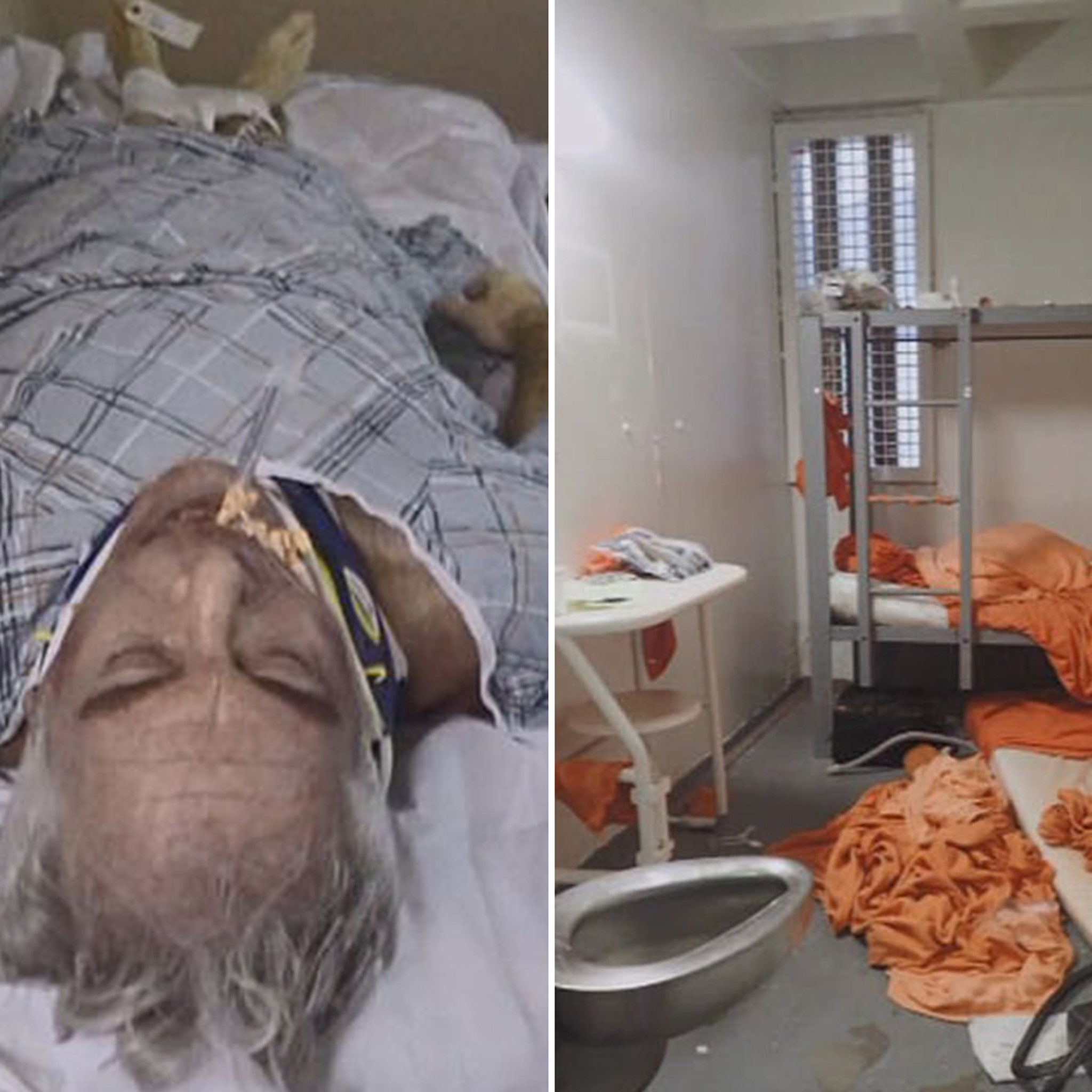 Jeffrey Epstein's Gruesome Autopsy Photos, More Suicide Questions Raised