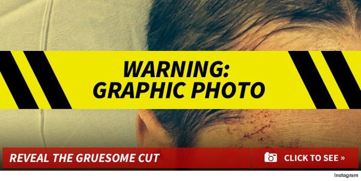Ben Mckenzie's Gruesome Cut