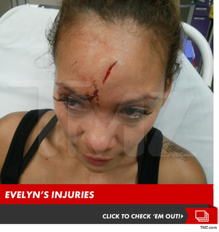 Evelyn Lozada's Injuries