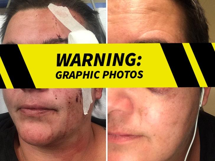 Linda Tirado's Eye Injuries