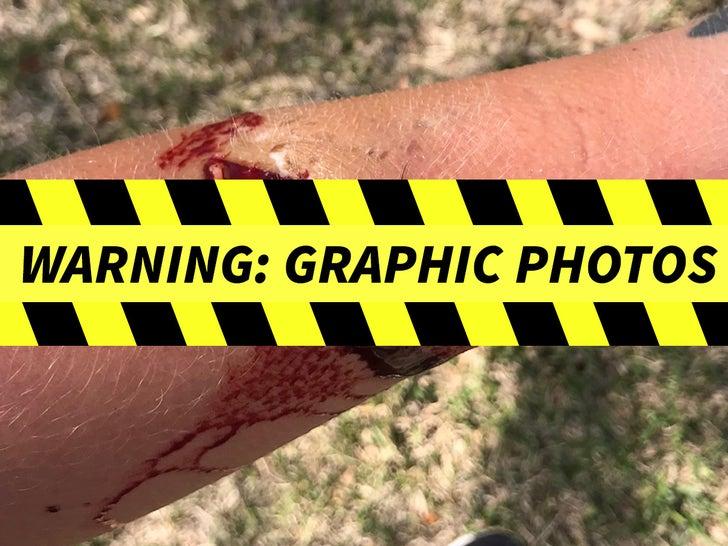 Ezekiel Elliott Dog Bite -- The Alleged Injuries