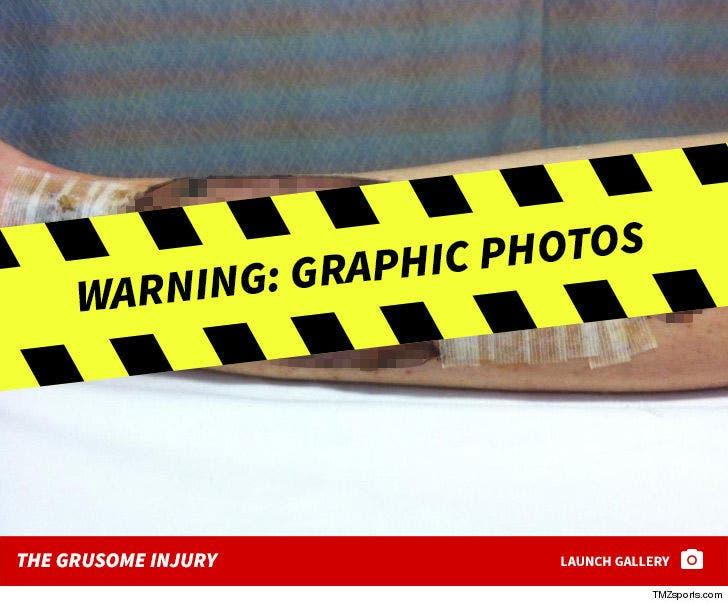 Lee Ann Yanni's Gruesome Leg Injury