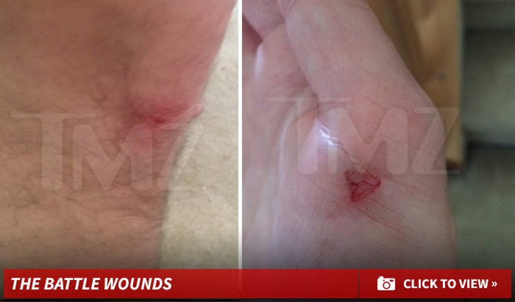 Victor Voronov's Battle Wounds